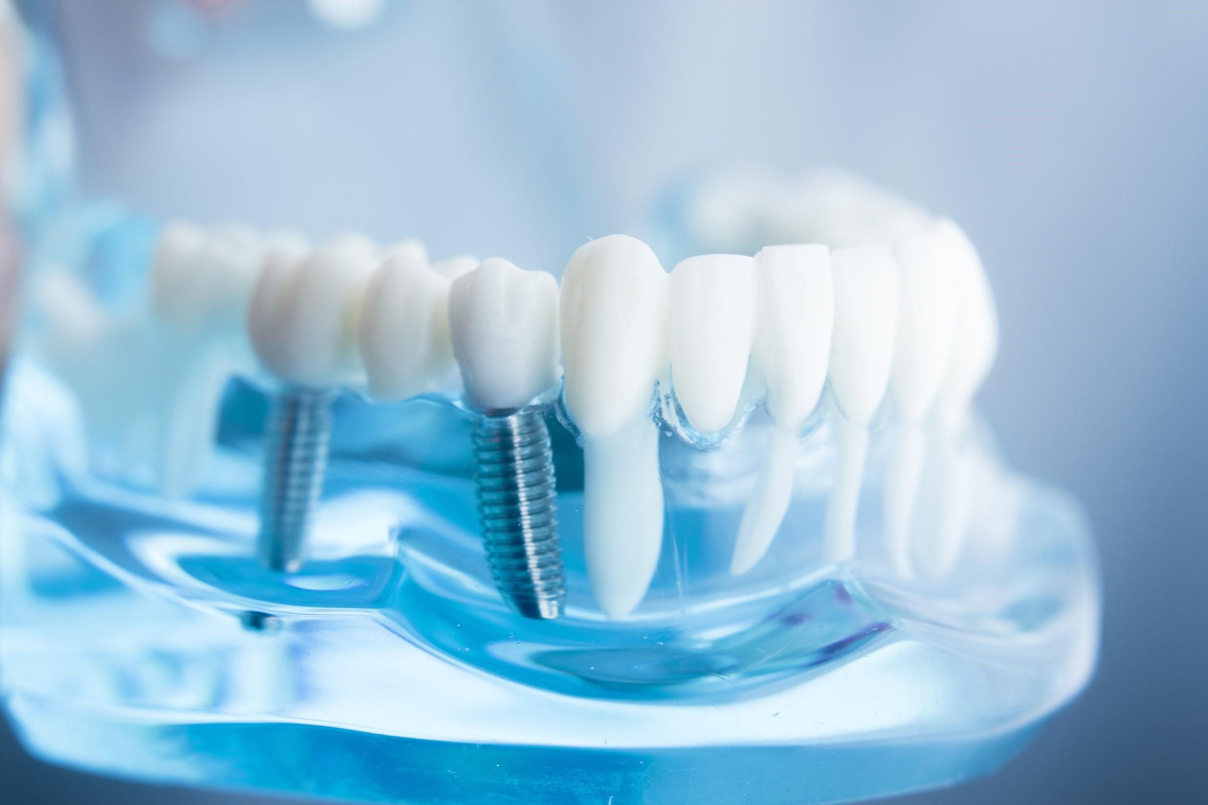 exemplo de prótese dentárias